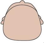 Brachycéphalie