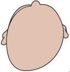 Plagiocéphalie